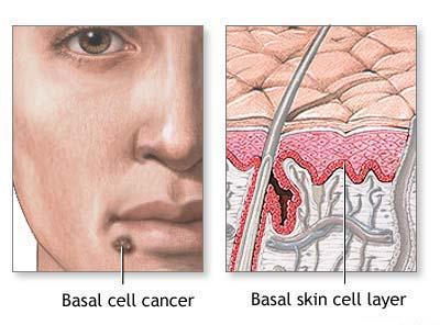 Facia Skin Cancer