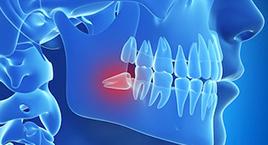 Exposure of Impacted Teeth