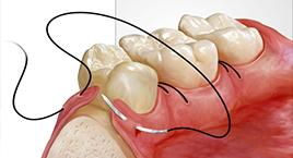 Oral and Facial Pathology