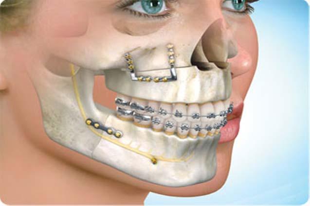 Oral and Facial trauma